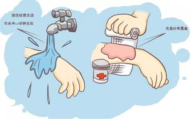 如何做好银屑病预防